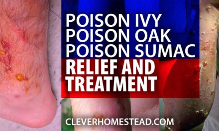 Poison ivy, poison oak and poison sumac RELIEF, TREATMENT and HEALING. A Helpful Illustrated Guide.