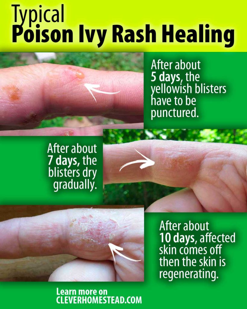 Typical Poison Ivy Rash Healing